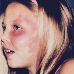 godupdates actress with facial birthmark paige billiot 2