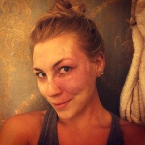 godupdates actress with facial birthmark paige billiot 3