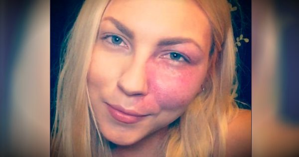"Bullied For Her Birthmark, This Actress Says To ""Love Your Flaws"""