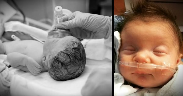 Their Baby Girl Was Supposed To Die, So The Family Prayed For A Miracle