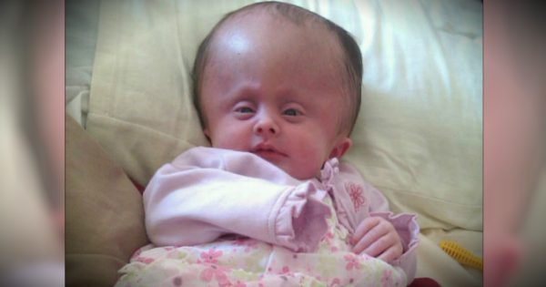 Miracle Baby Born With Adult-Sized Head Defies Doctors' Expectations