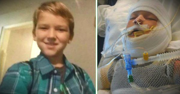 10-Year-Old With Special Needs Fights For Life After Being Set On Fire