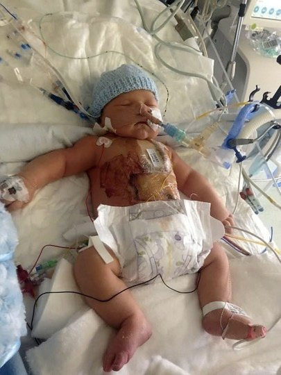 godupdates baby born with half a heart 1