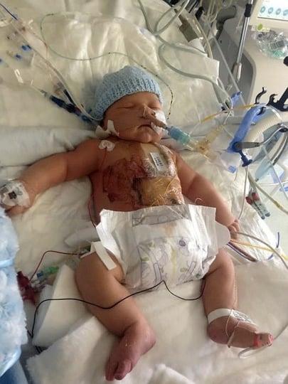 godupdates baby born with half a heart 1