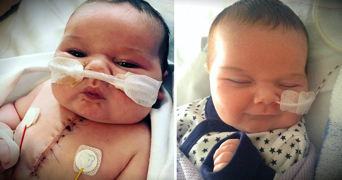 Miracle Baby Born With Half A Heart Survives Major Surgery ...