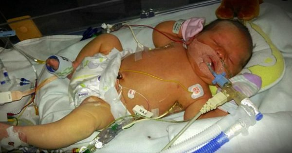 Miracle Baby Baffles Doctors When She Was Born With More Water In Her Body Than Blood