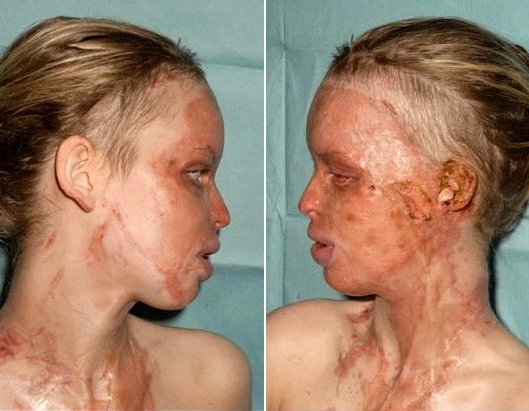 godupdates acid attack survivor katie piper 1