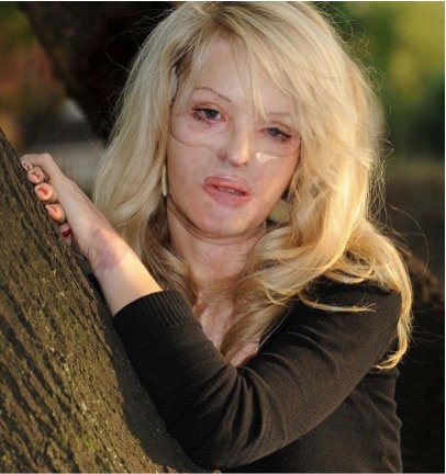 godupdates acid attack survivor katie piper 2