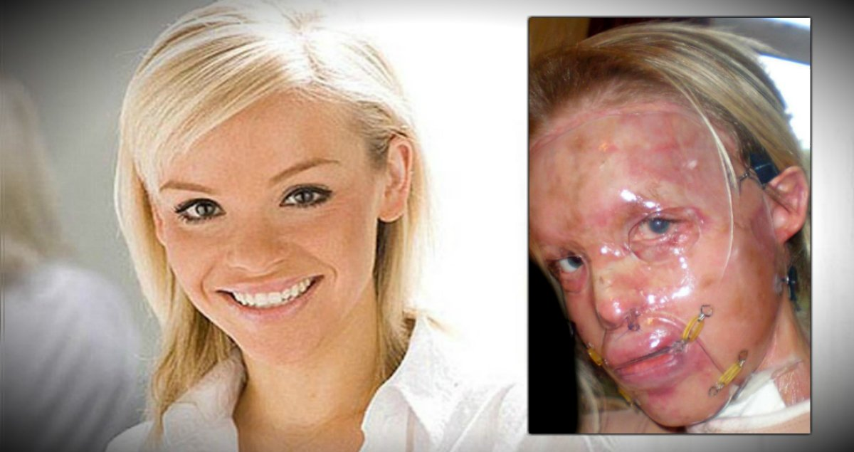 True Inspirational Stories - Katie Piper - Real-Life Hero