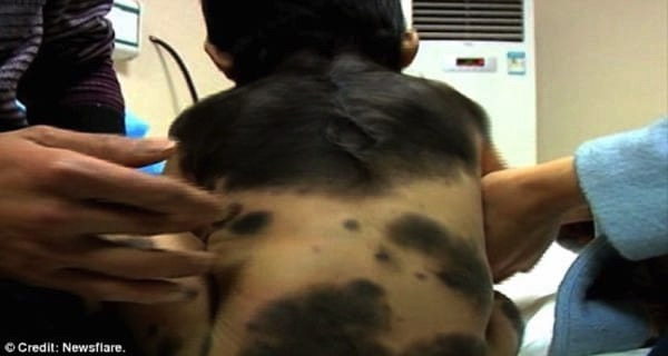 godupdates mom's response to strangers who mocked her son's moles fb