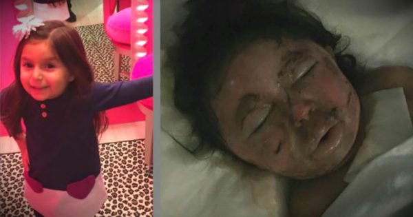 Mom's Warning After Pumpkin Explosion Disfigures Daughter's Face