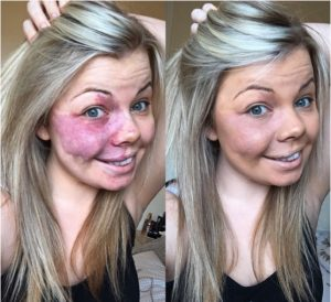 godupdates woman posts No Make-Up Selfie Featuring Her Birthmark 2
