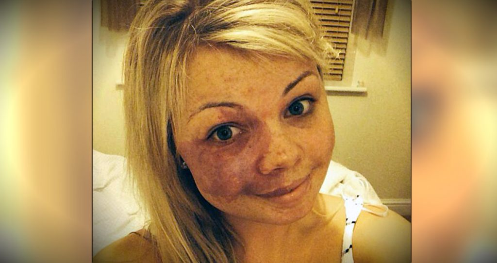 godupdates woman posts No Make-Up Selfie Featuring Her Birthmark fb