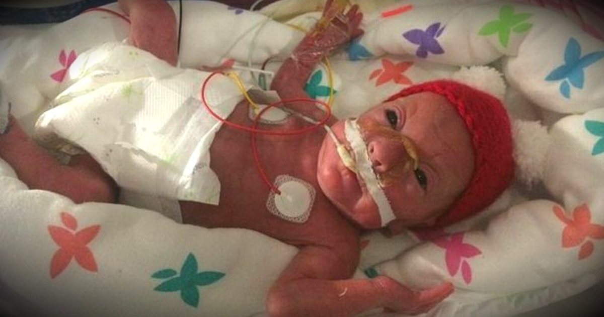 godupdates miracle baby weighed less than a bunch of grapes fb