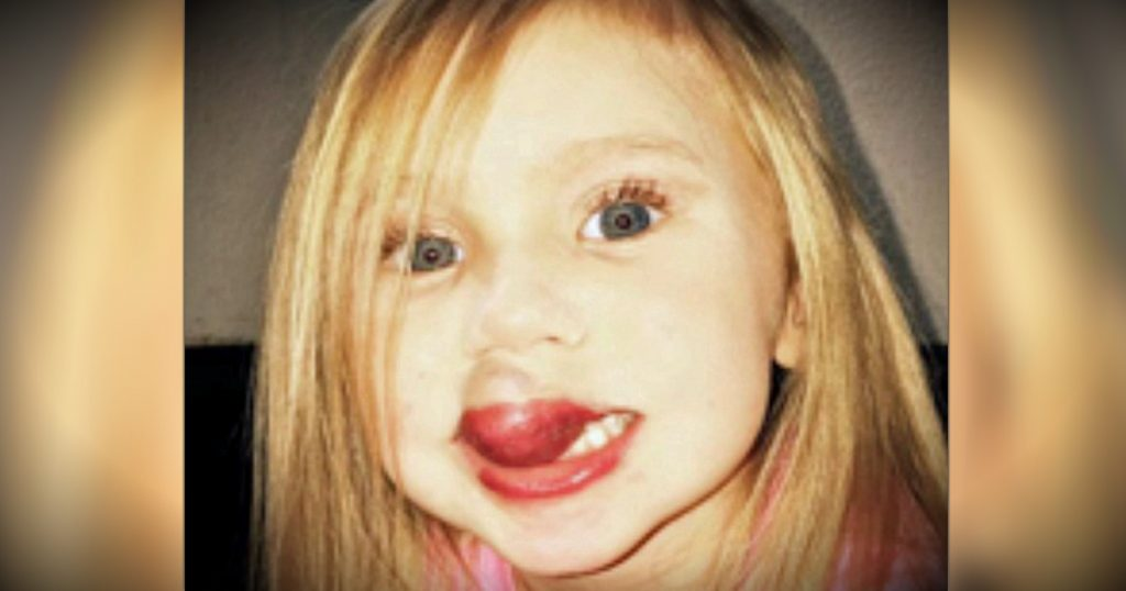 godupdates 3-year-old gets surgery to remove kiwi-sized birthmark on lip fb