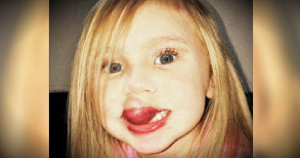 godupdates 3-year-old gets surgery to remove kiwi-sized birthmark on lip fb
