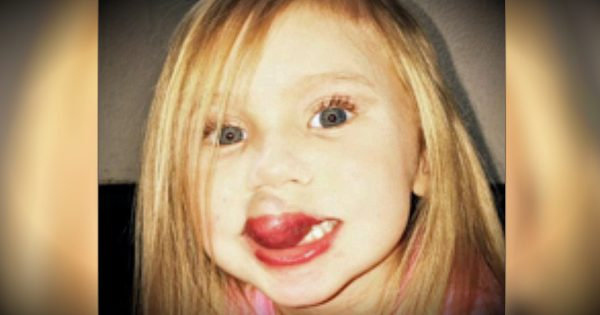 The Spot On Her Baby's Lip Grew Into A Debilitating, Kiwi-Sized Birthmark