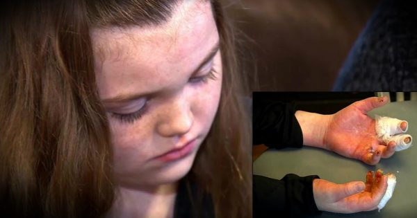 Girl Suffers Horrible Accident From Popular Kids' Do-It-Yourself Project