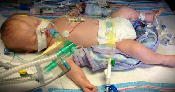 Parents Saying Goodbye As Baby Is Taken Off Life Support Get A Miracle