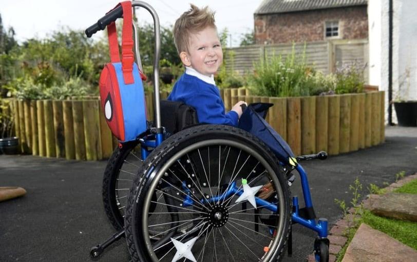 godupdates miracle boy born with virtually no brain recovers 2