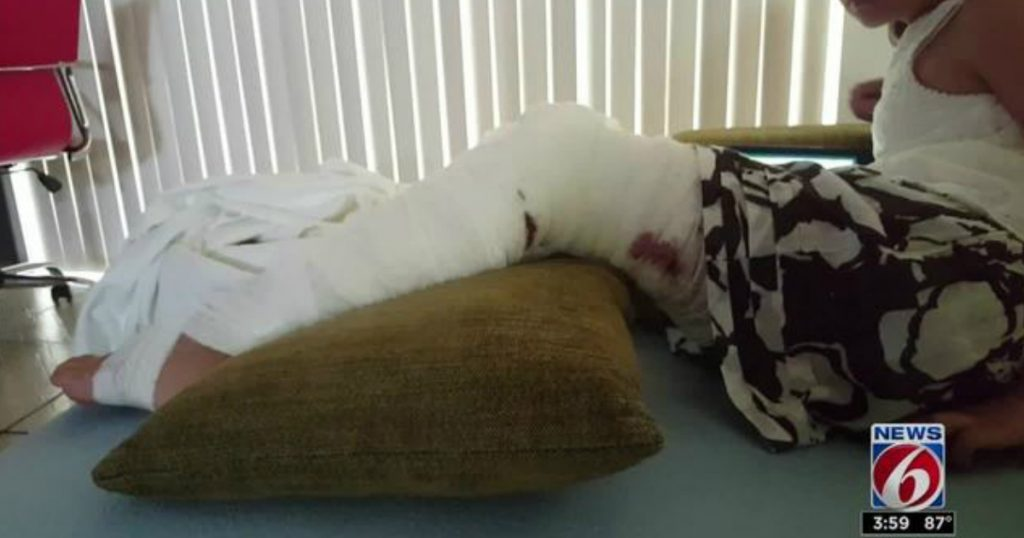 godupdates 10-year-old girl survives alligator attack 1