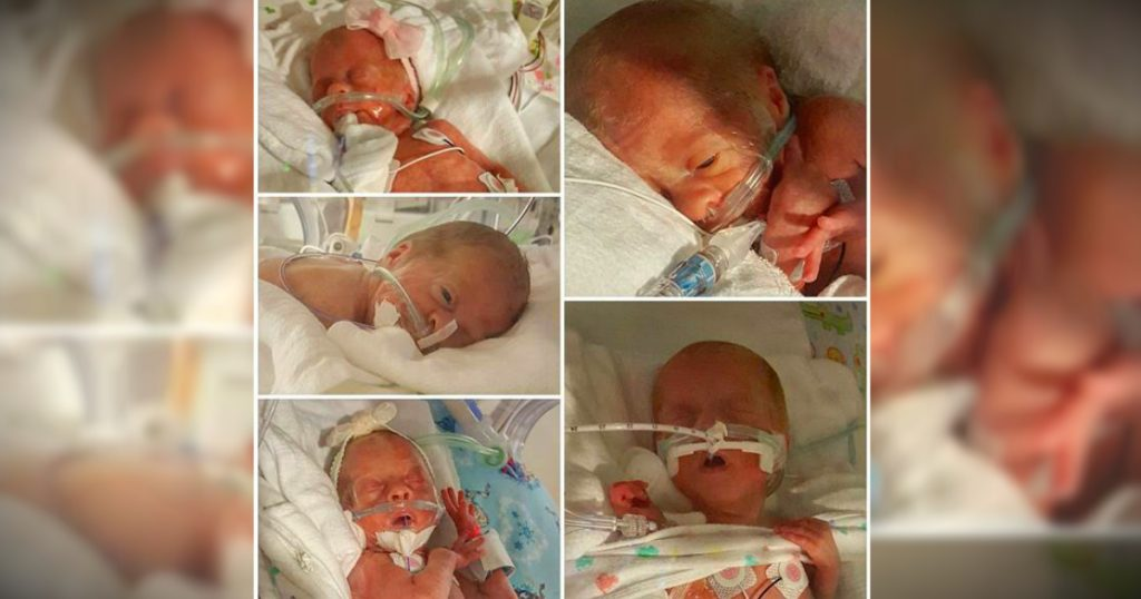 godupdates kentucky couple blessed with miracle quintuplets 2