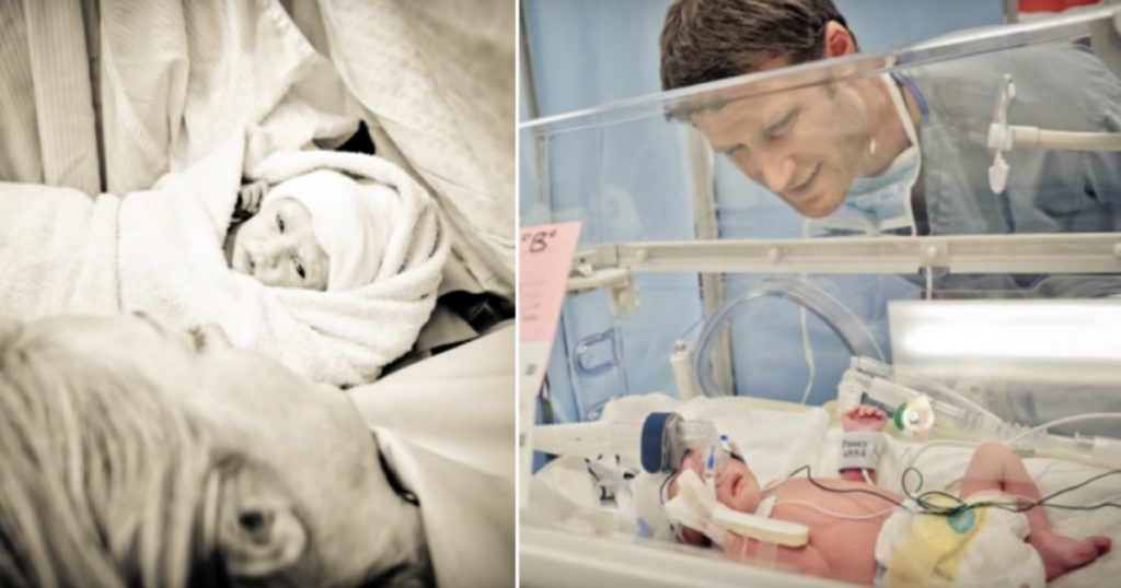 godupdates rare mom twins miracle umbilical cord started choking other 3