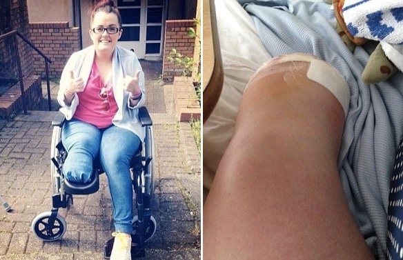 godupdates woman ignored the bump on her foot for 12 years 1
