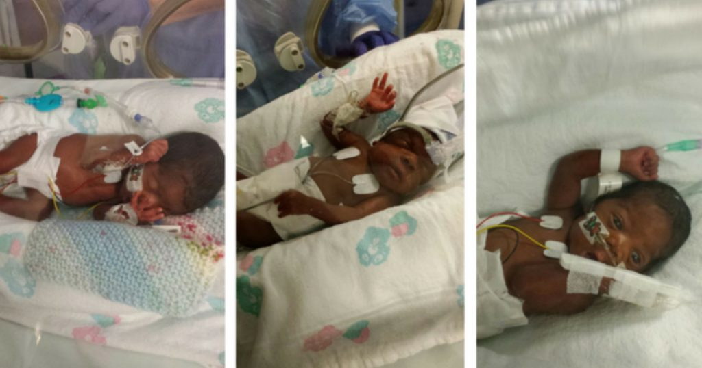godupdates miracle triplets survived severe illness and are reunited 1