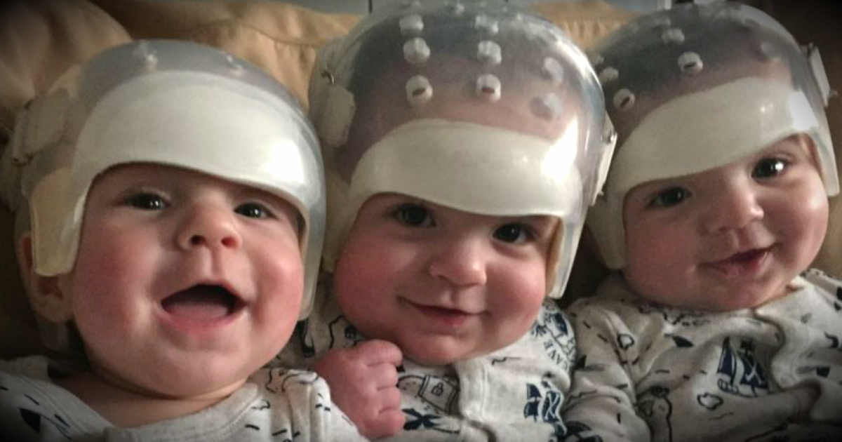 godupdates special triplets share the same rare birth defect make medical history fb