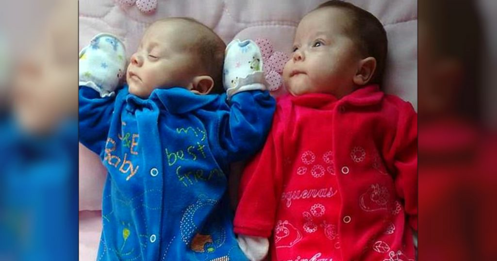 godupdates brain-dead mom delivered twins after 123 days on life support 2