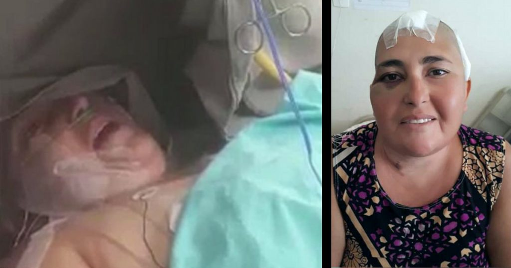 godupdates woman kept awake during brain surgery praises god fb