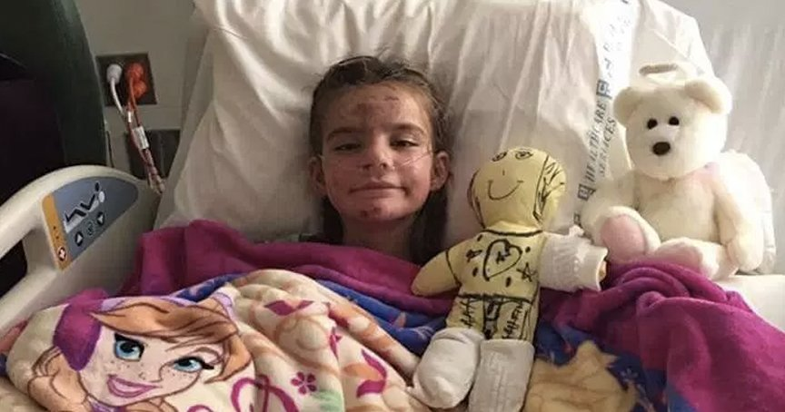 Mom Suffers Horrific Burns While Risking Her Life To Save Her Children _ angel fiorni _ god updates