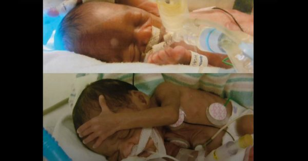 NICU Nurse Found The Reason For Her Twins Being Born Prematurely