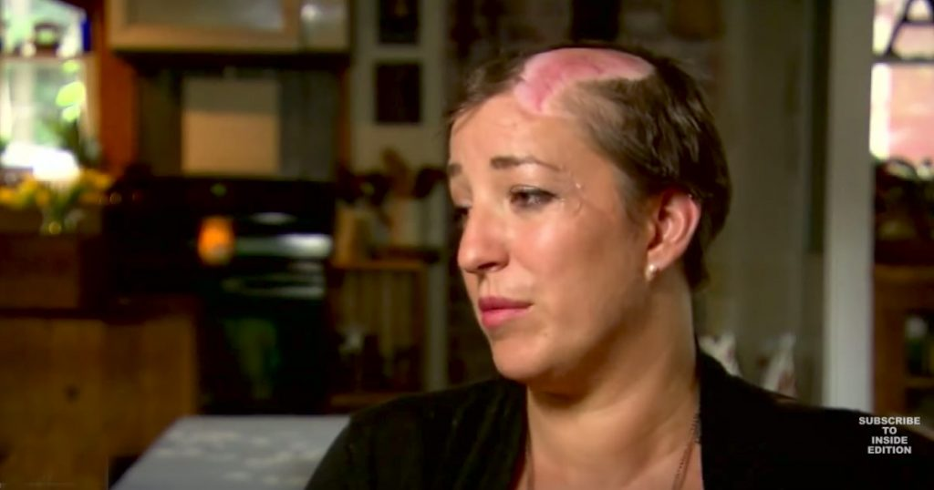 Mom Scalped While Working On Her Car
