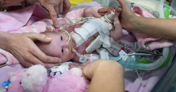 Parent's Celebrating A 'Miracle Baby' Born With Heart Outside Her Body