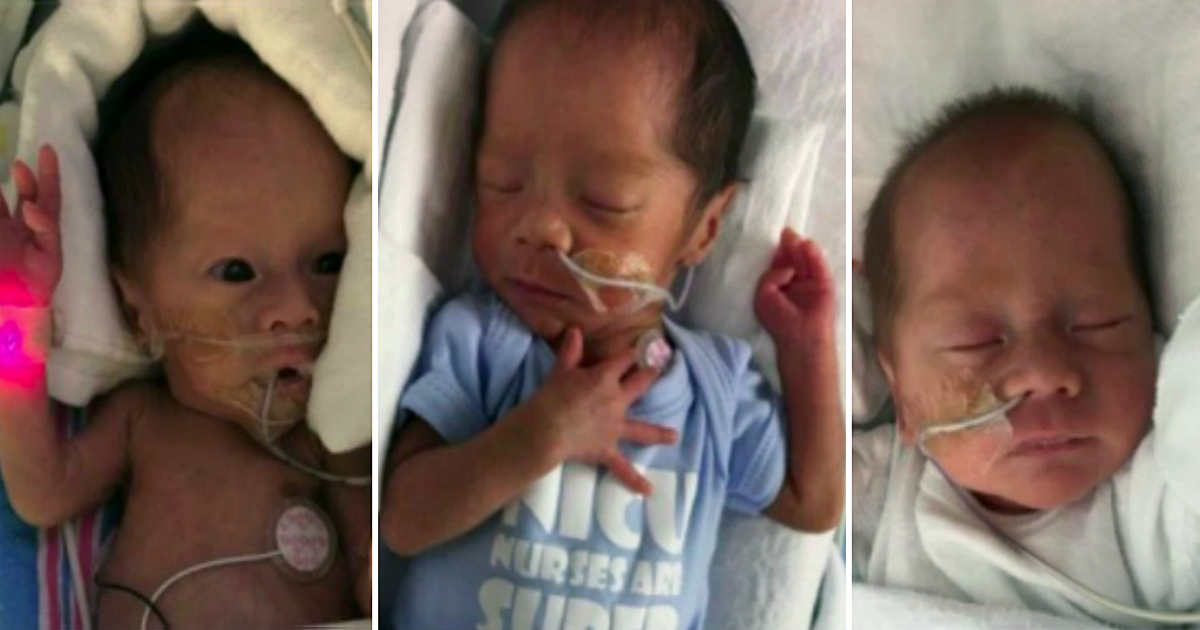 godupdates chinese couple's triplets rescued from forced abortion fb