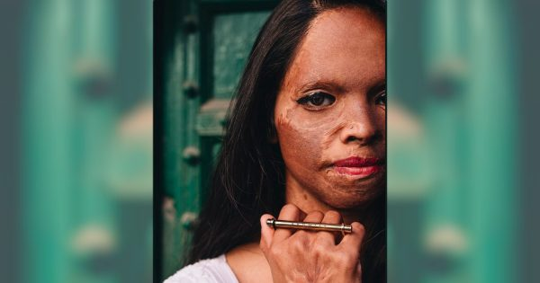 Inspirational True Story of Woman Finding Love After Acid Attack Nearly Killed Her