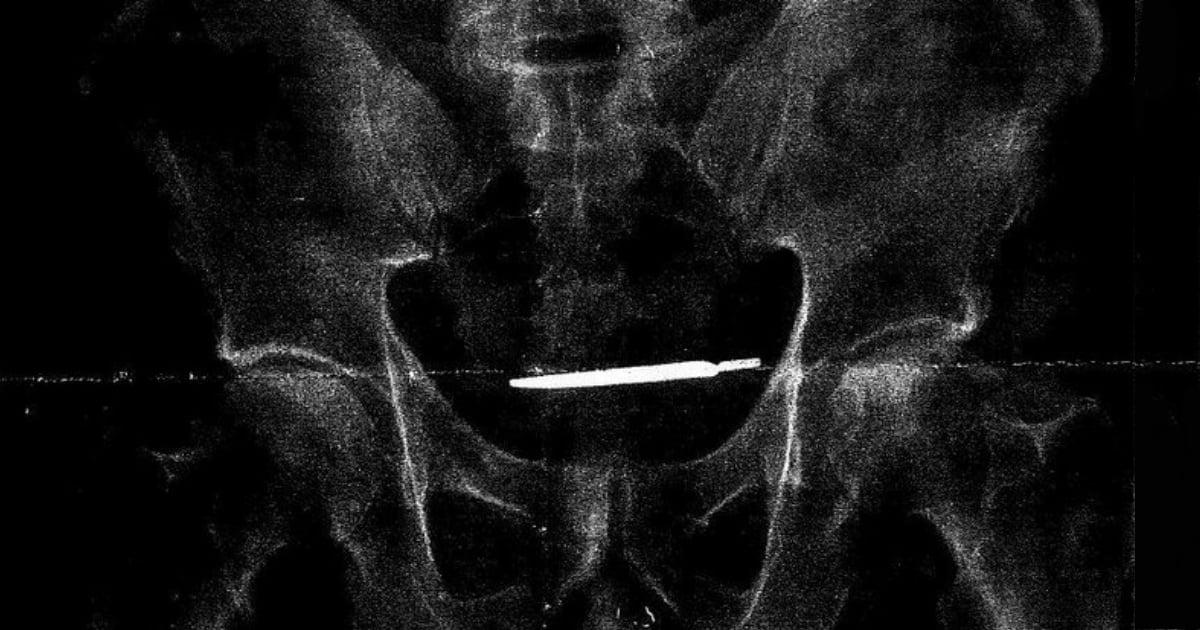godupdates scalpel found inside army veteran fb