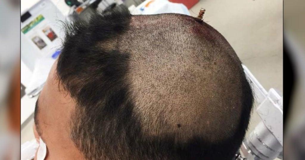 godupdates 6-inch screw pierced a boy's skull bizarre stories 2