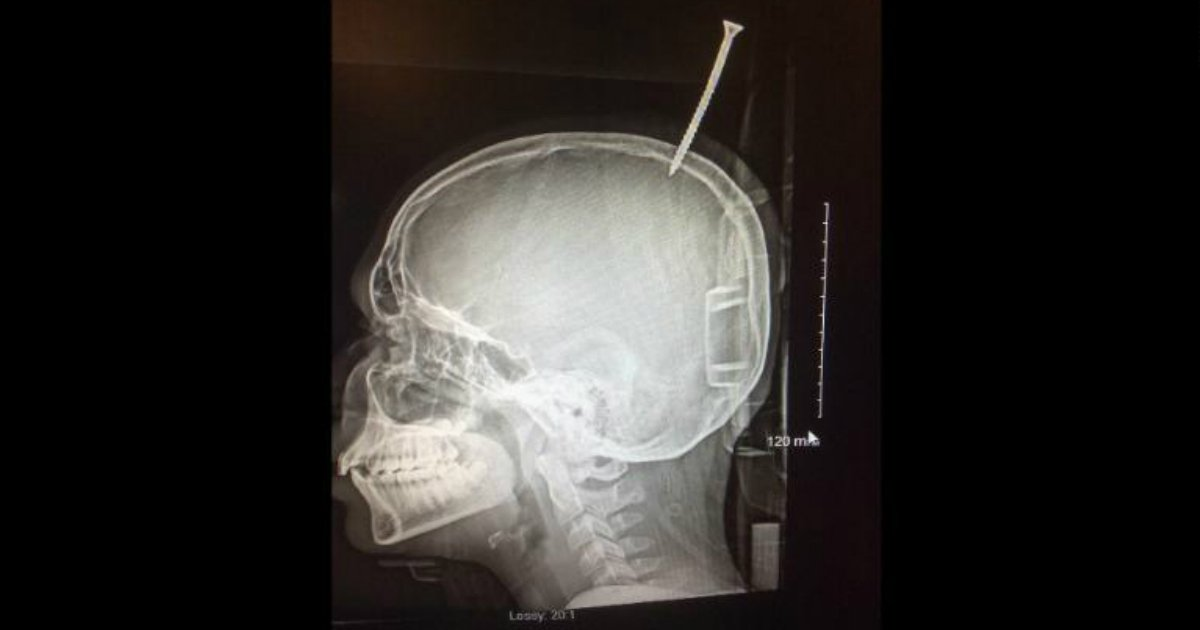 6-inch screw pierced a boy's skull bizarre stories fb