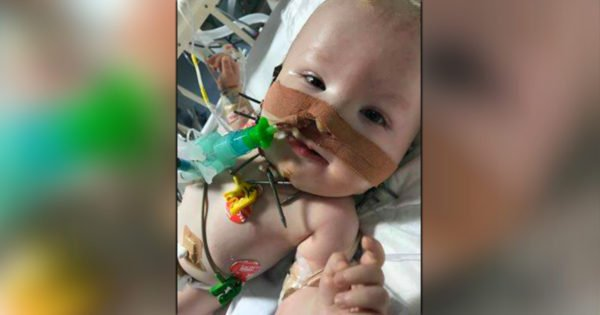 Baby Boy Is A Living Miracle As First To Undergo Bizarre Facial Operation