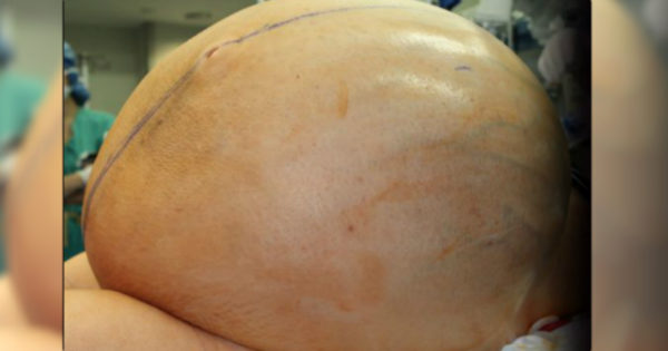 Doctors Race To Remove Enormous 132-Pound Tumor From Desperate Woman