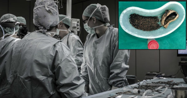 Man Ignored Pain for Years But Then Has Over 4,000 Gallstones Removed In Surgery