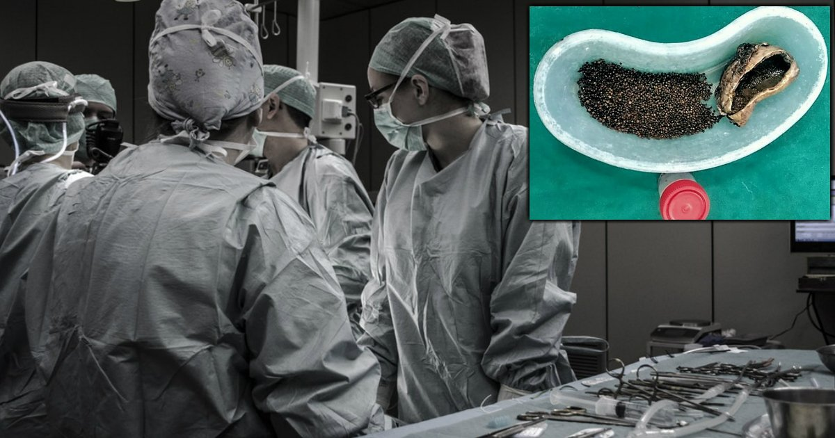godupdates over four-thousand gallstones man ignored pain fb