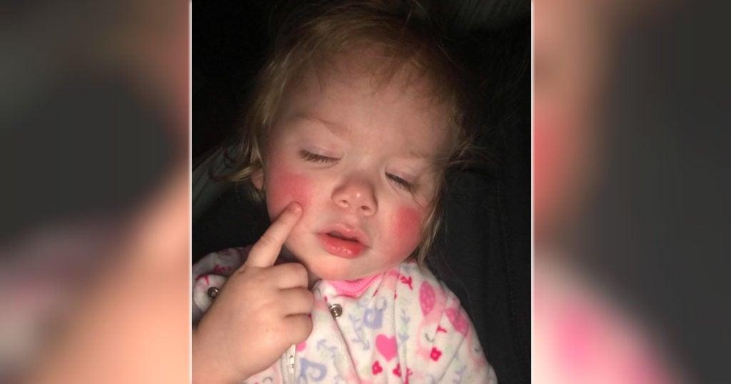 godupdates toddler allergic to water 2