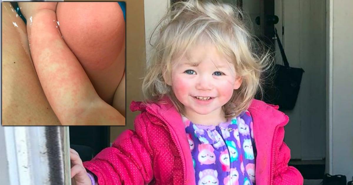godupdates toddler allergic to water fb