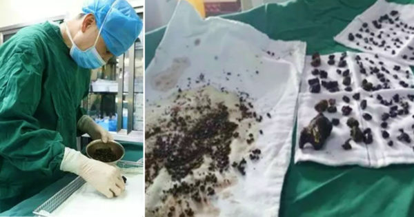 Woman Skipped Breakfast For Years Until Doctors Had To Remove 200 Gallstones