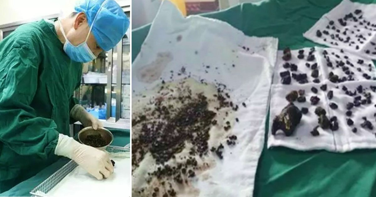 godupdates woman skipped breakfast 200 gallstones fb
