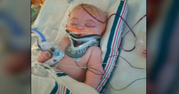 Mom Warns Others After A 2-Foot Fall Nearly Killed Her Precious Baby Boy